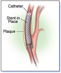 Carotid Stent